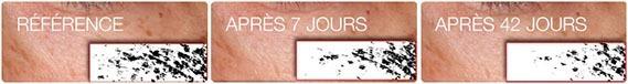 Résultats Herbalife Skin incroyables en seulement 7 jours